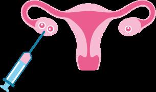 Samen, Eizelle, Eileiter Transferembryo