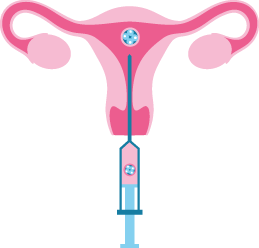 Insemination IUI, IVF ICSI, Kryokonservierung